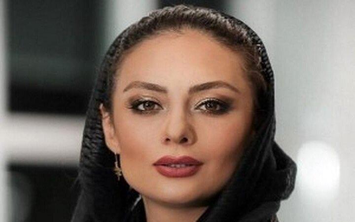چهره عجیب یکتا ناصر پس از انجام جراحی زیبایی + عکس