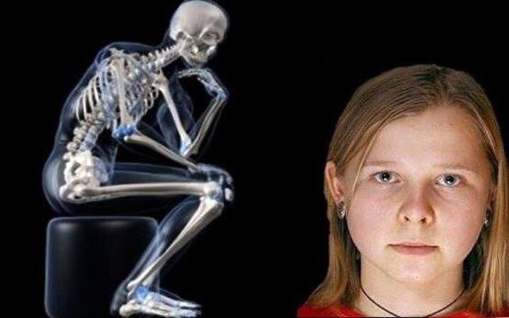 این دختر عجیب میتواند داخل بدن همه افراد را ببیند + عکس