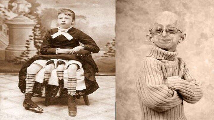 تصاویری از انسانهای ناقص الخلقه و عجیب جهان؛ از مرد تک شاخ تا انسان چهار پا