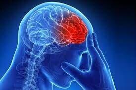 اینفوگرافیک / پنج علامت هشداردهنده سکته مغزی