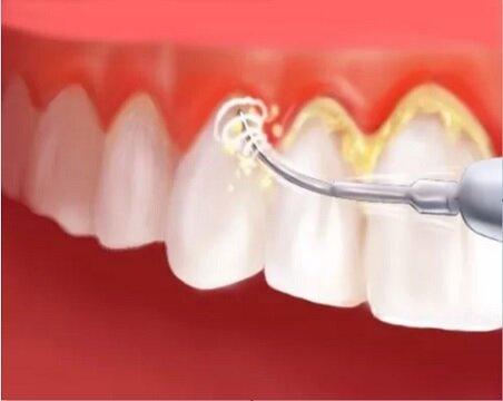 از بین بردن پلاک دندان با ۳ راهکار کاربردی