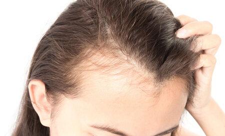 با ریزش موی بعد از کرونا چه کار کنیم؟